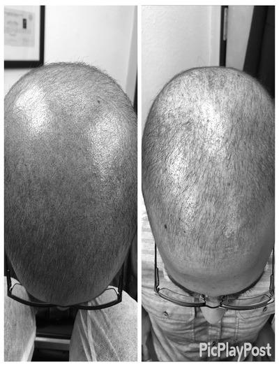 scalp micropigmentation near by