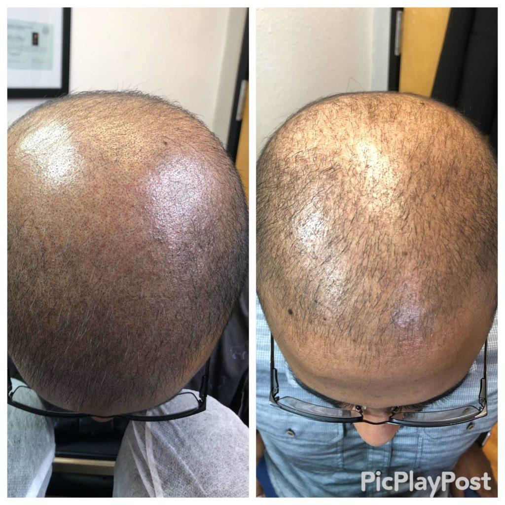 ISG-scalp-micropigmentation-austin-2